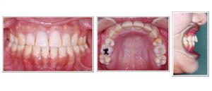 補綴(人工歯)による無理な歯並びの治療