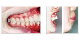 上顎前突(出っ歯)治療前