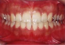 治療後の歯並び