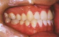永久歯列の完成時