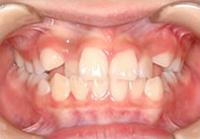 噛前歯のデコボコと八重歯