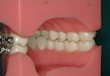安定した噛み合わせでは上下の歯が1本対2本であたる