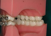 上下の歯が1本対1本であたる