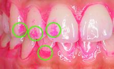 磨き残し部位、フロスや歯ブラシの当て方を指導します